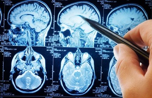 prostate-cancer-dementia-study